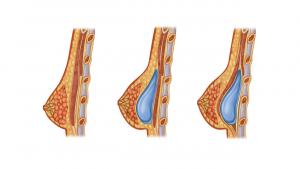 Эндопротезирование молочных желёз доктор Росс