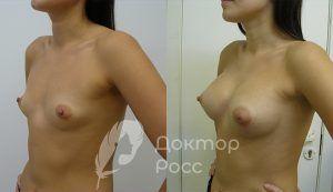 Пластическая коррекция груди: сколько способов использует доктор Росс?