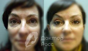 До и после блефаропластики