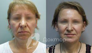 Методики подтяжки лица. Хирургические и безоперационные