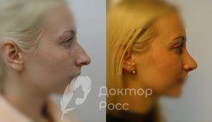 Реабилитация после ринопластики носа от доктора Росс