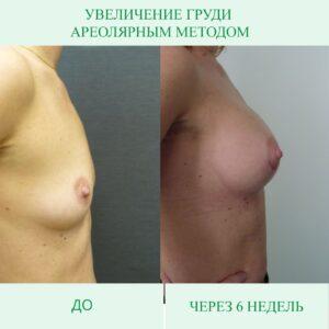 Увеличение груди имплантами. Какие бывают способы?