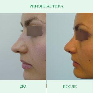 Отёк носа после ринопластики
