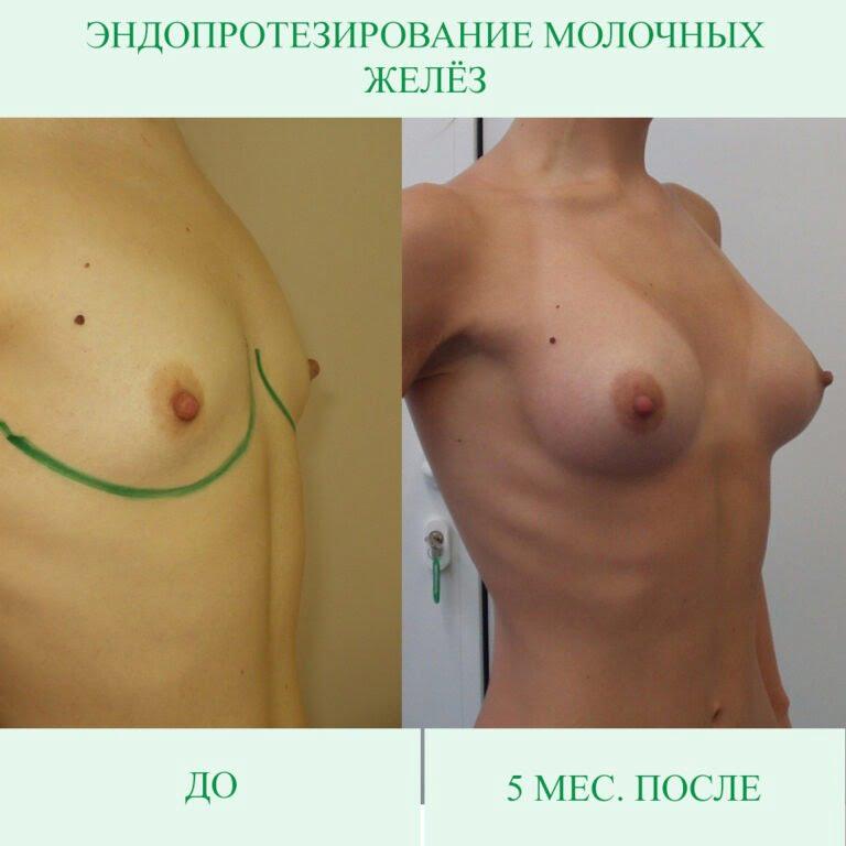 До после грудь 2