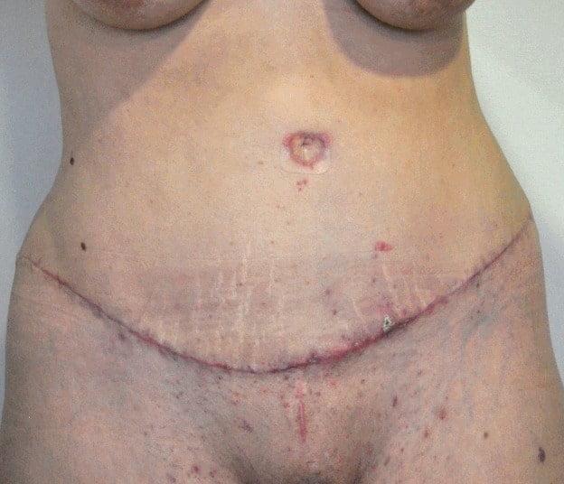 Гипертрофическое рубцевание через 2 месяца после Абдоминопластики