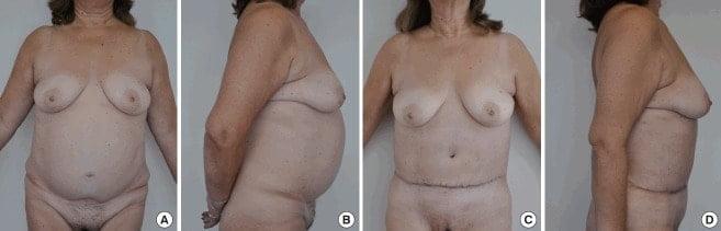 Результаты повторной абдоминопластики