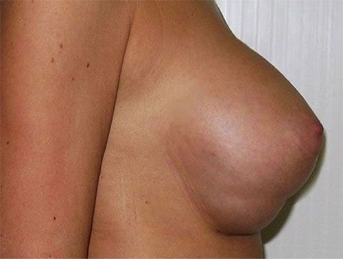 Противопоказания при мастопексии