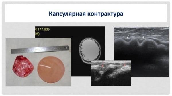 Капсулярная контрактура после маммопластики: причины, симптомы, лечение
