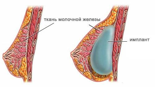Отзывы: мастопексия