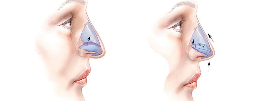 Отек кончика носа после ринопластики