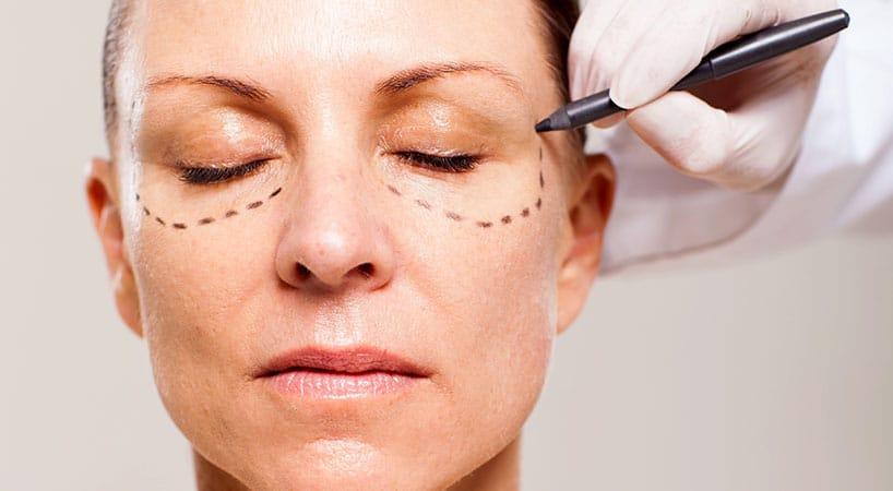 Уход за глазами после блефаропластики