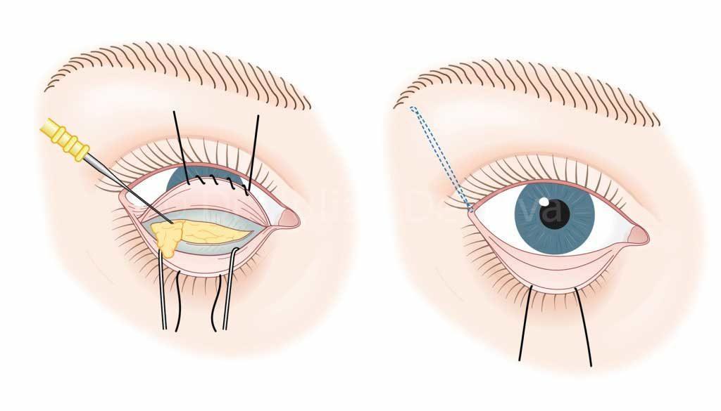 Синяки и отеки после блефаропластики