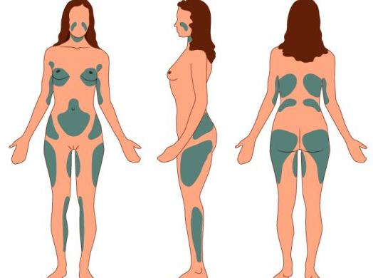 Отзывы: липофилинг груди