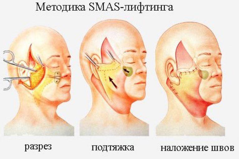 SMAS (СМАС) лифтинг шеи