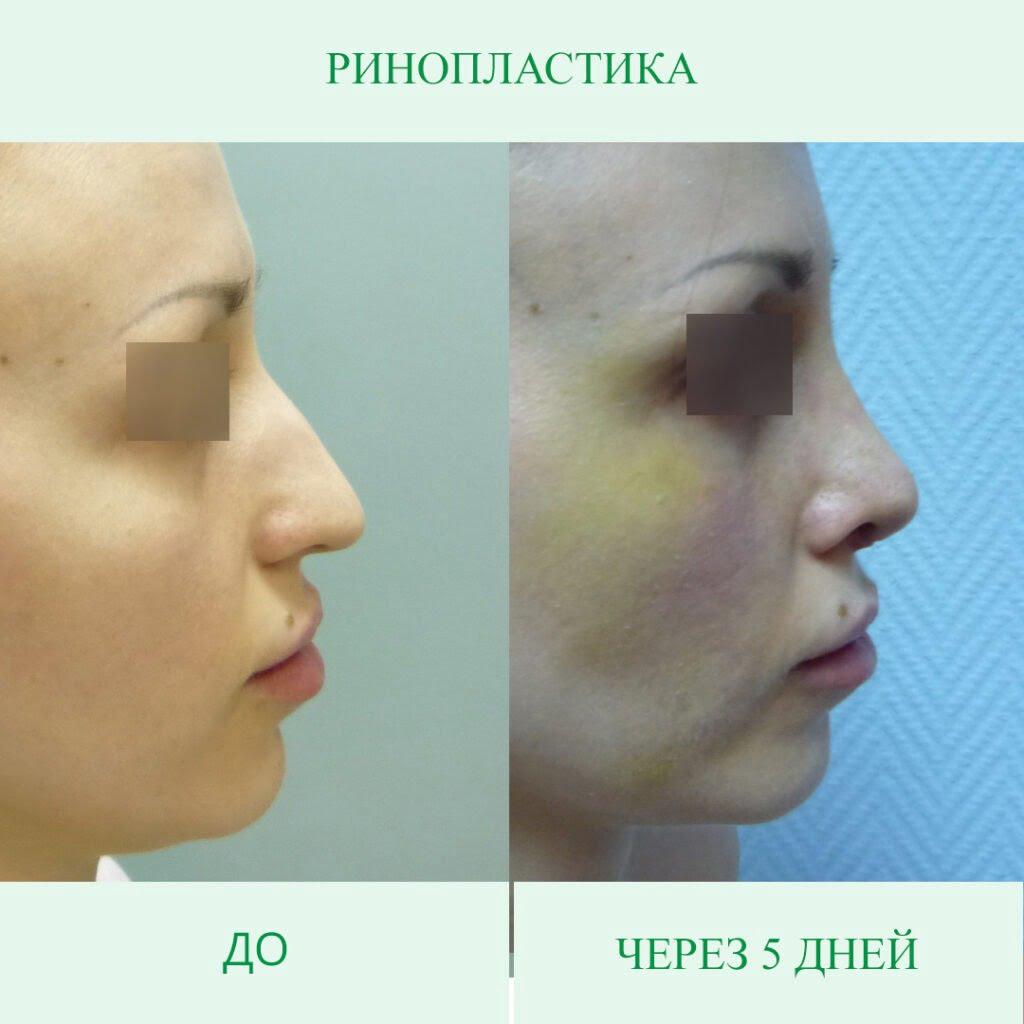 Опускается ли кончик носа после ринопластики?