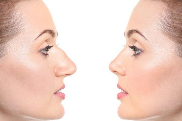 Фото до и после: ринопластика