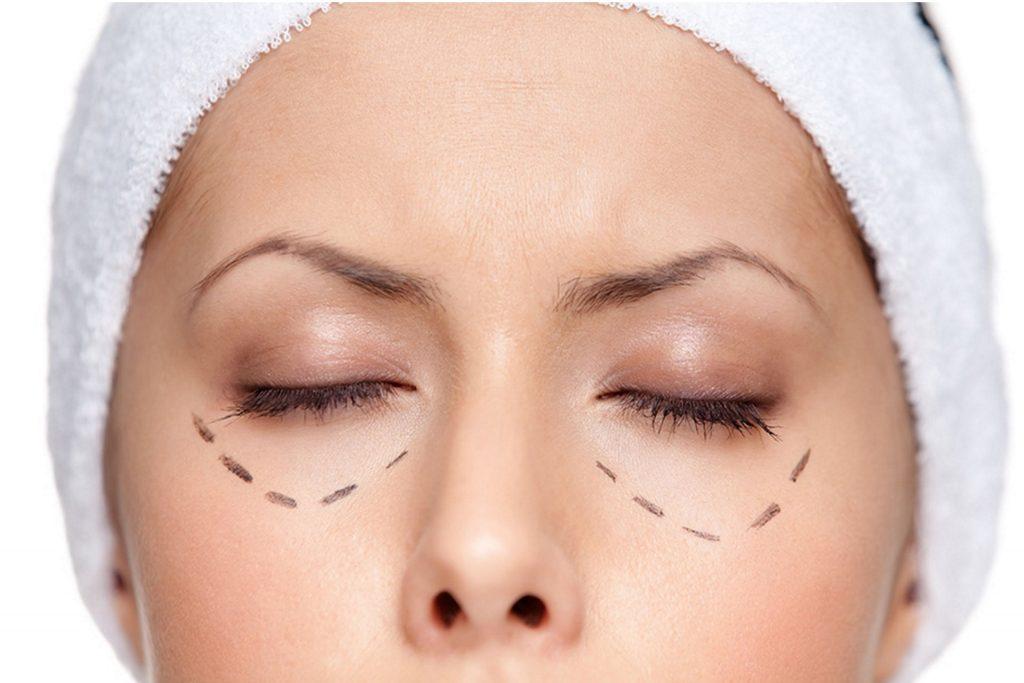 Контурная пластика глаз