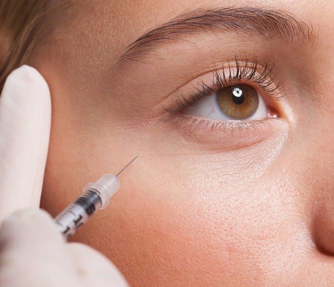 Лифтинг вокруг глаз - методы омоложения