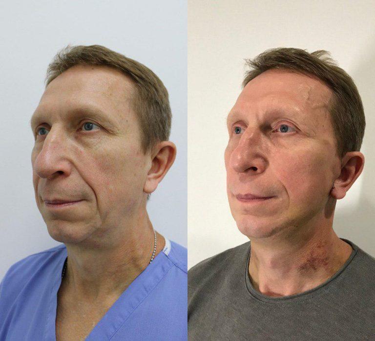 До и после спейслифтинга Доктора Росс