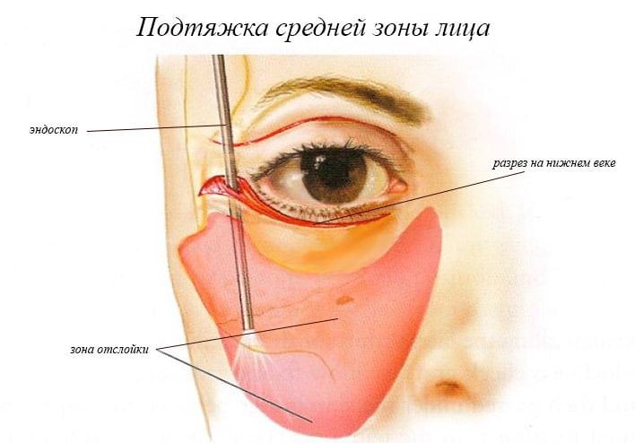 Подтяжка средней трети лица