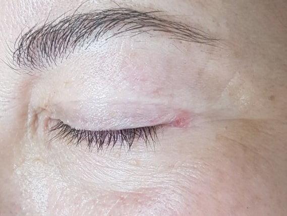 Шрамы и рубцы после блефаропластики