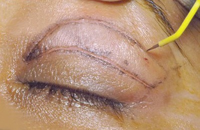 Есть ли альтернатива хирургической блефаропластике