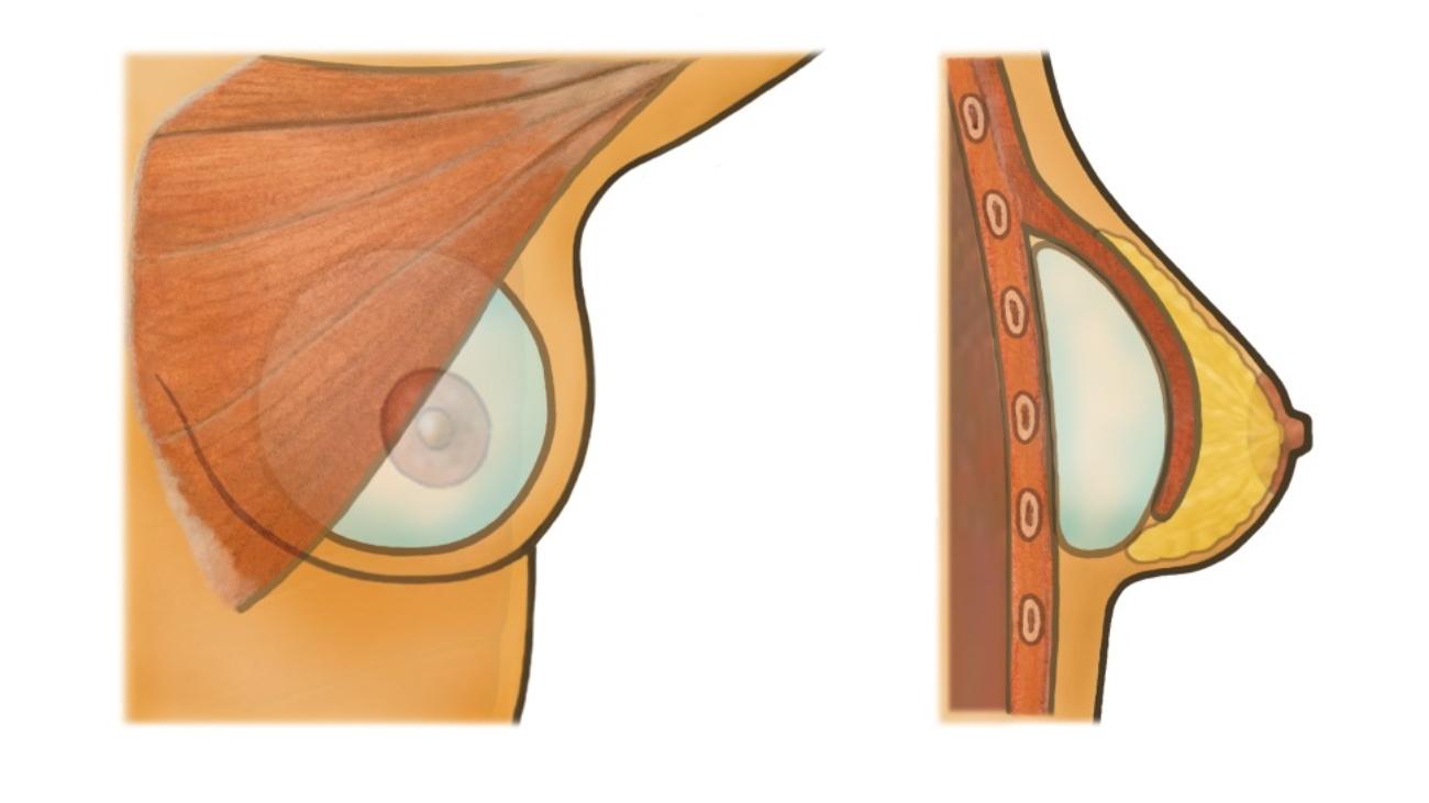 breast enlargement image 4
