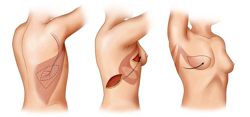 Восстановление после маммопластики